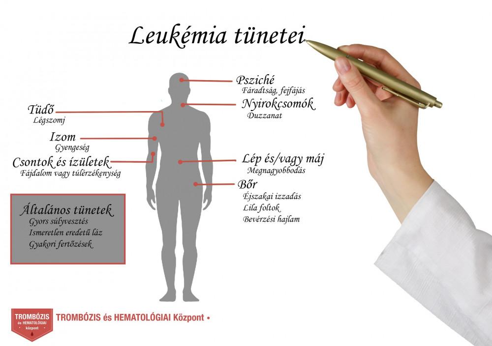 orvos kezeli a csontok és ízületek fájdalmait milyen gyógyszereket kell alkalmazni ízületi gyulladások esetén