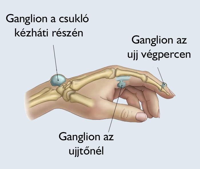 koksz a csípőízület osteoarthritis je 2 fok