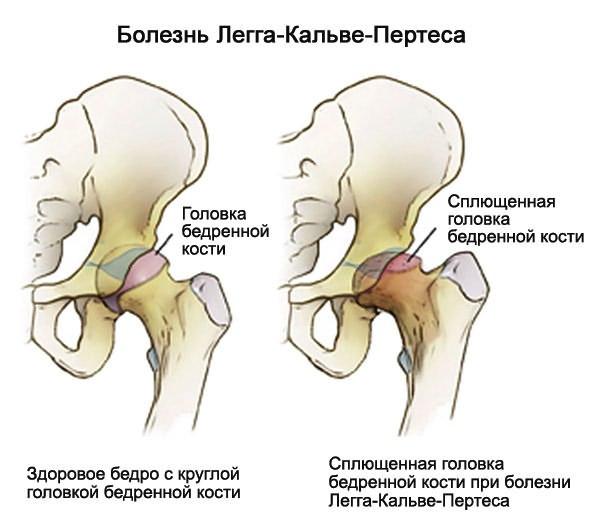 mi a jobb csípőízület deformáló artrózisa