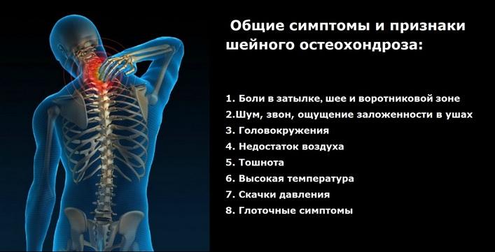 gyulladásgátló kenőcsök a nyaki gerinc osteokondrozisához)