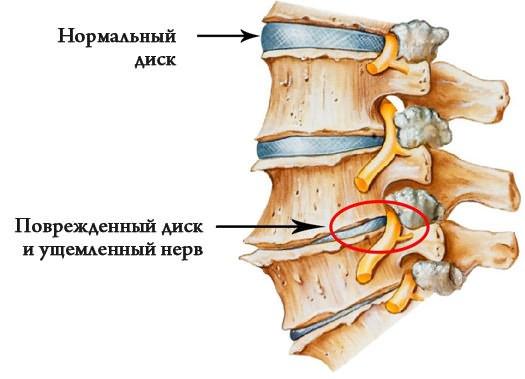 kismedencei fájdalom kismedence carpal sprain kezelés