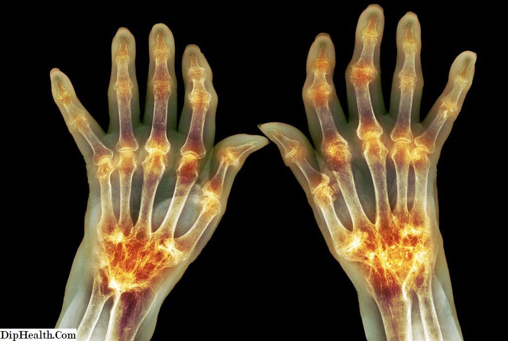 az osteoarthritis arthritis kezelésével ellentétben)
