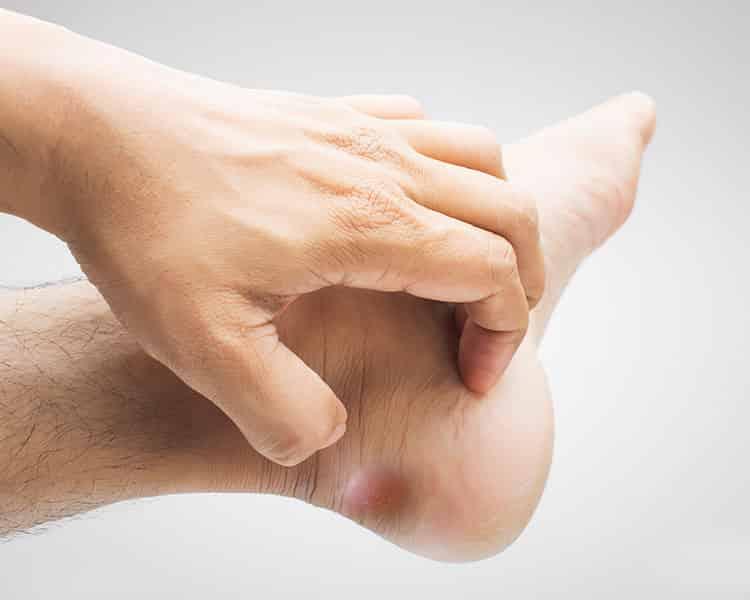 Az első carpal metacarpalis ízület artrózisa, Lábízületi probléma