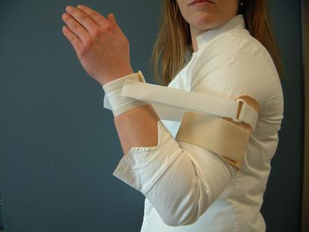 ízületi deformáció artritiszben