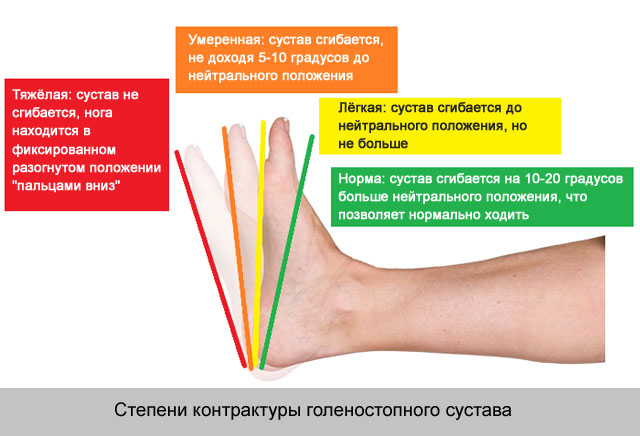 metacarpophalangealis ízületek kefe sérülése)