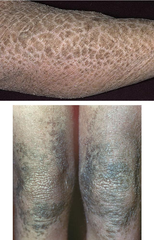 a térdízület meniszkuszának megszakításának kezelése)