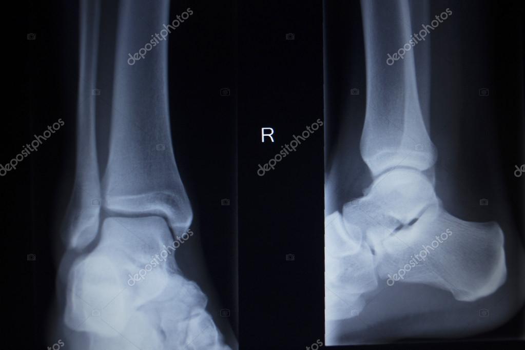 Lábízületek boka sérülése, Bokaficam 4 oka, 7 tünete és 5 kezelési módja [teljes leírás]