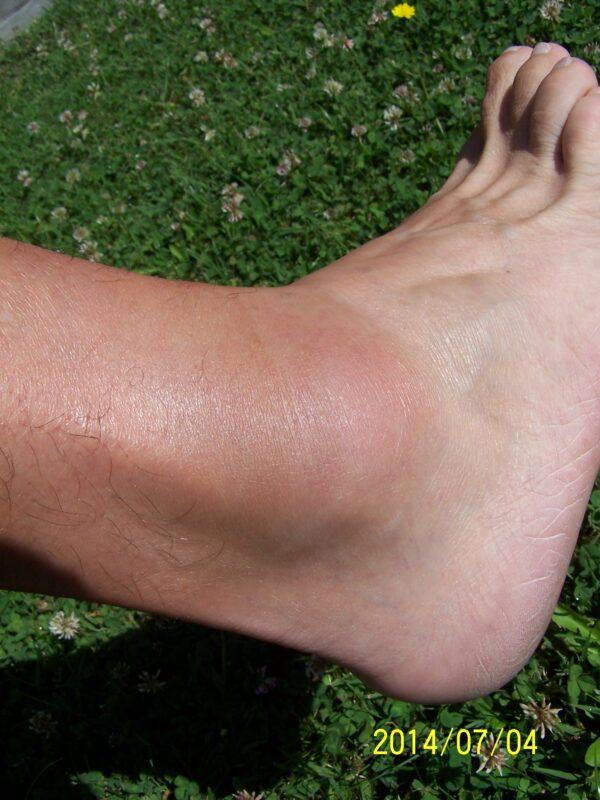 boka és láb sérülés