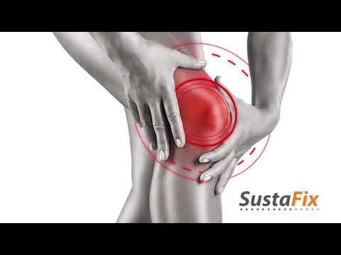 ízületi fájdalom keton ízületi fájdalomcsillapítók listája