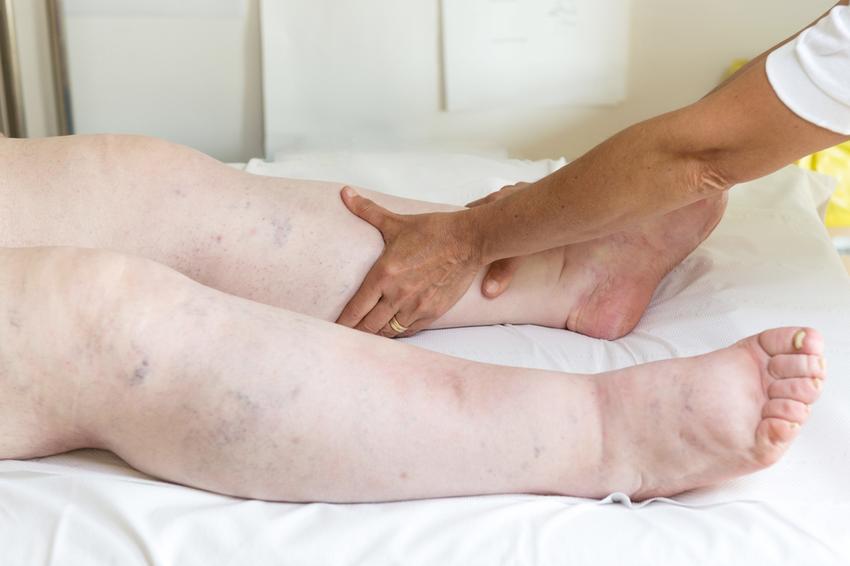 duzzadt láb gyógymódok terhesség alatt