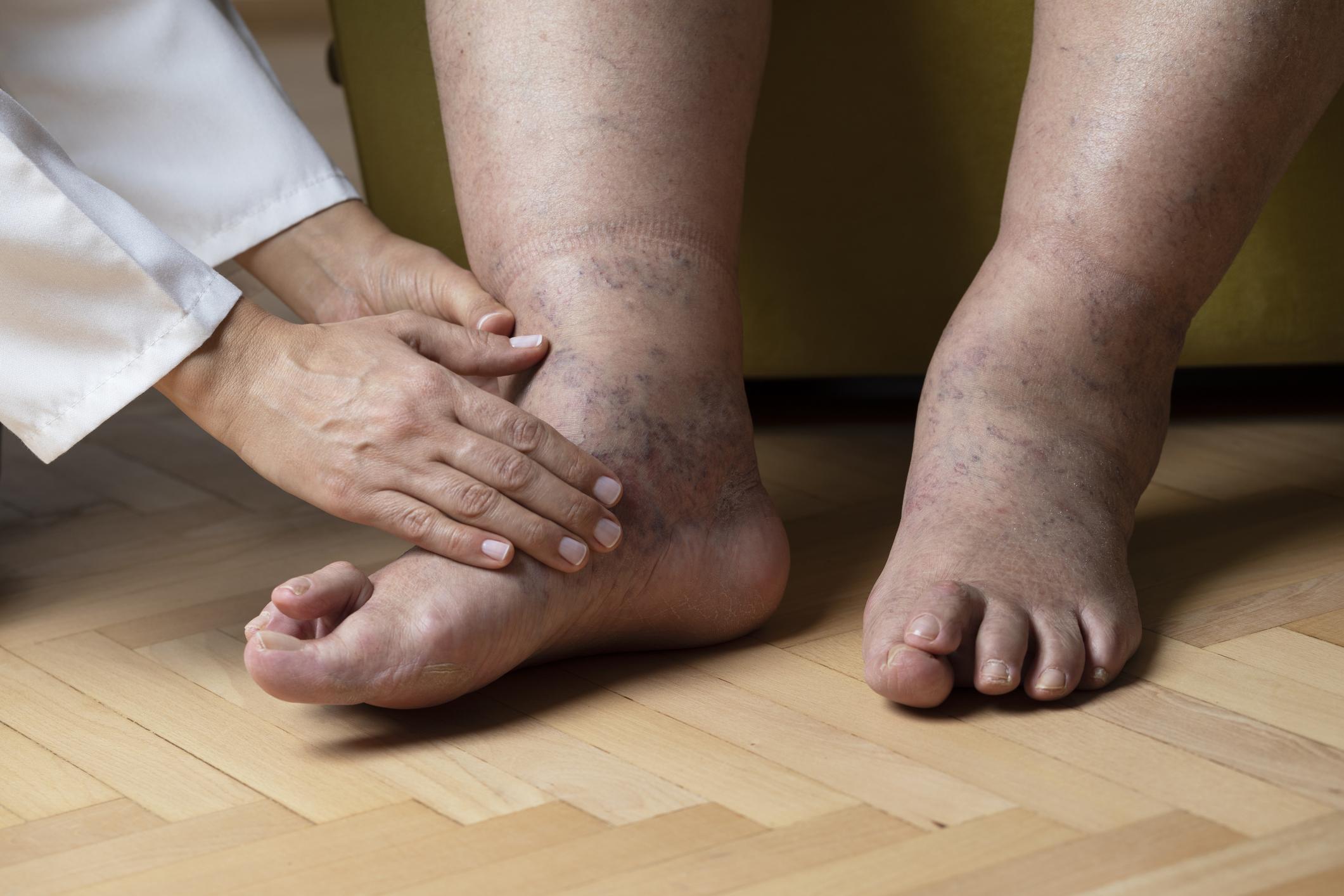 fájdalmas karok és lábak kezelése)