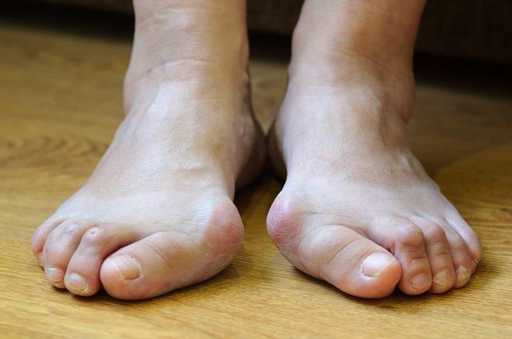 a lábujj ízületének kapszula károsodása)