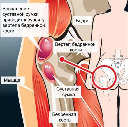 térdszalag nyúlás tünetei
