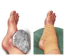 fájdalommentes boka sérülés)