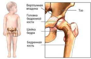 gumiabroncsok a csípő dysplasia kezelésére)