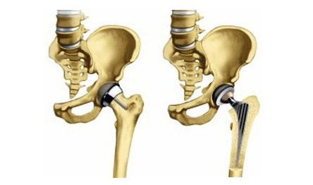 A csípő artrózis tünetei és kezelése, a betegség lényege - Masszázs