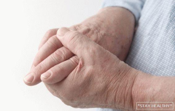 kezelési rendszer a kéz artrózisához)