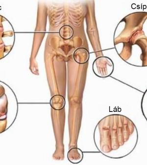 váll diszlokáció természetes kezelés milyen gyakorlatok a térdízület fájdalmára