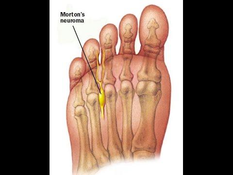 metatarsalis lábízületi kezelés