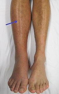 mi a károsodás a boka ligamentumaira)