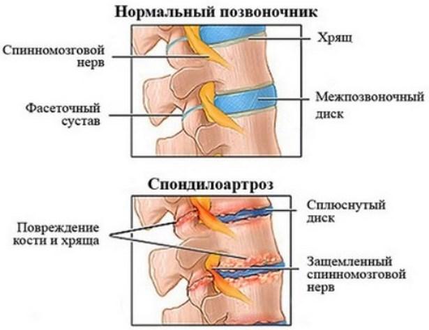 mi a térdízület első fokának artrózisa)