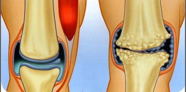 a térd artrózisának helyzete