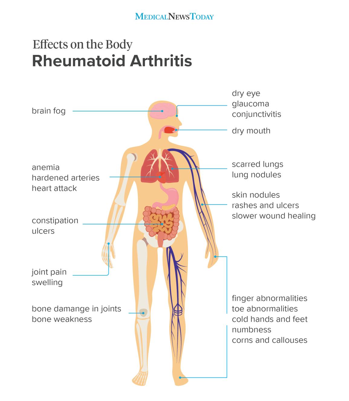 a lábujjak rheumatoid arthritis